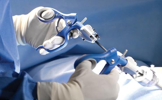 Трускавецькі хірурги та урологи провели подвійну операцію лапароскопічним методом із видалення лівої нирки та жовчного міхура
